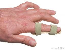finger in splint